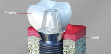 Dental Implants Fords NJ