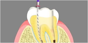 Root Canal Treatment Fords NJ